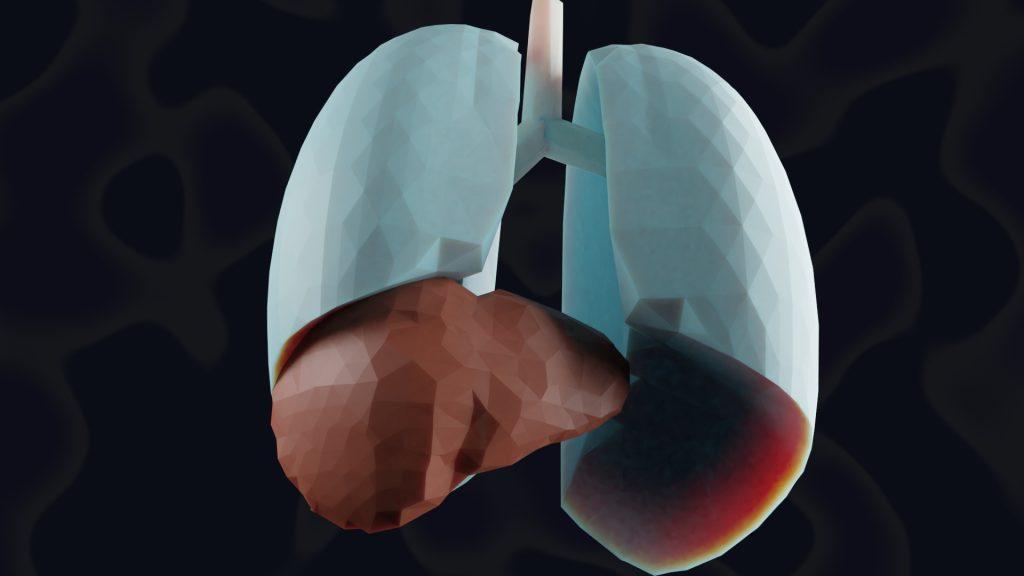 Medicinske ilustracije ŽZ